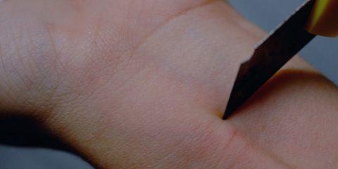 Sintomas, características y tratamientos del «cutting»