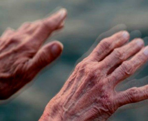 ¿Cuáles son las diferencias entre el parkinson y el alzheimer?